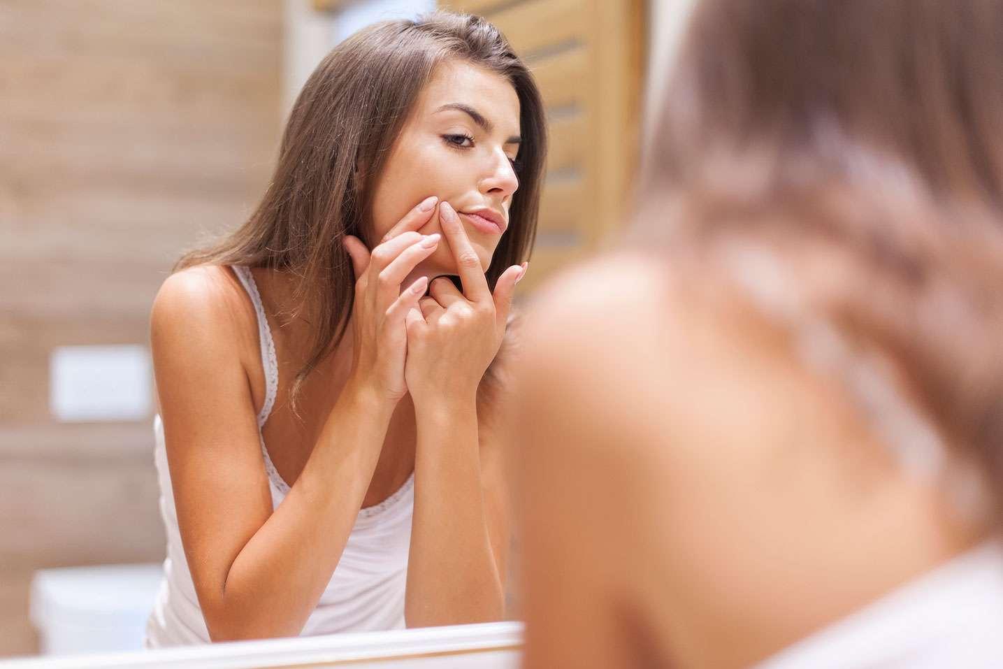 Lee más sobre el artículo 6 formas sencillas de tratar las cicatrices del acné